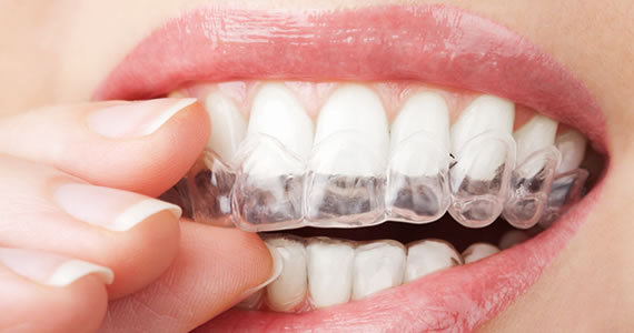 Invisalign® – the clear choice.